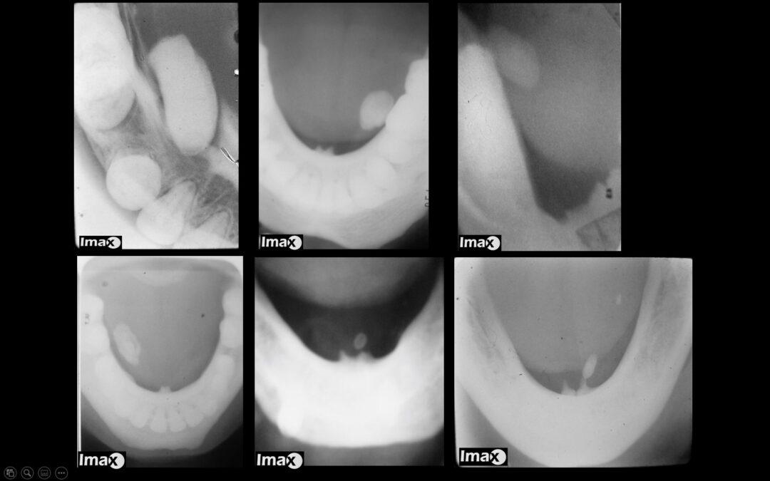 Casos 40-41 Cálculos salivales en el conducto submandibular.