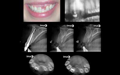 Caso 52 Avulsión diente 2.1 y fragmento de diente en tejidos blandos.