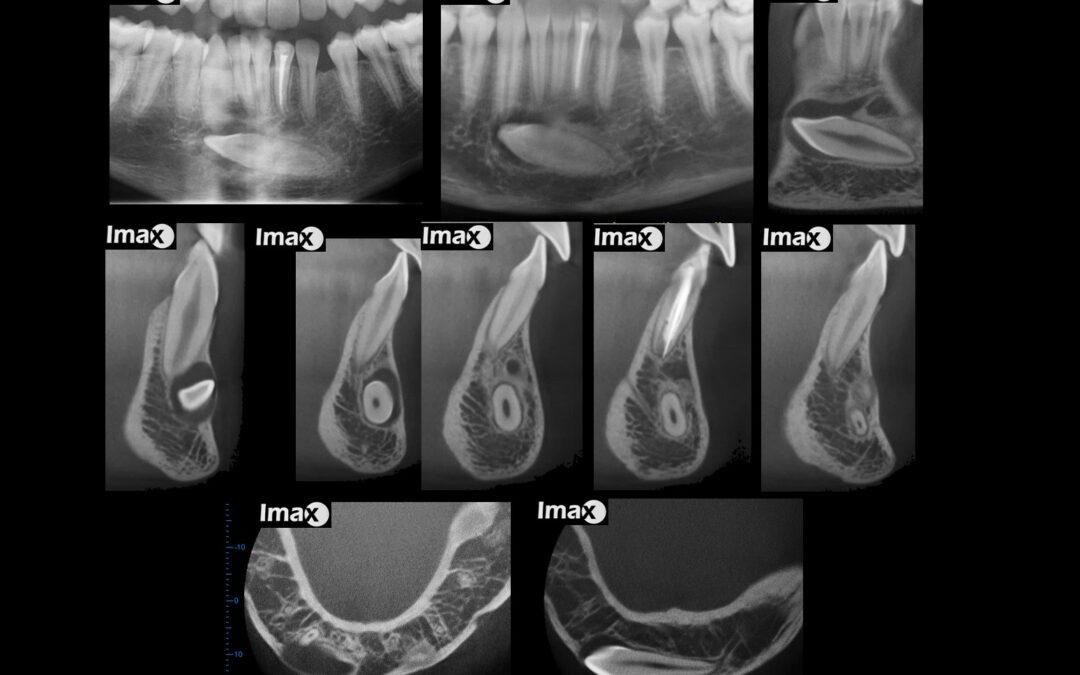 Caso 70 Transmigración del diente 3.3