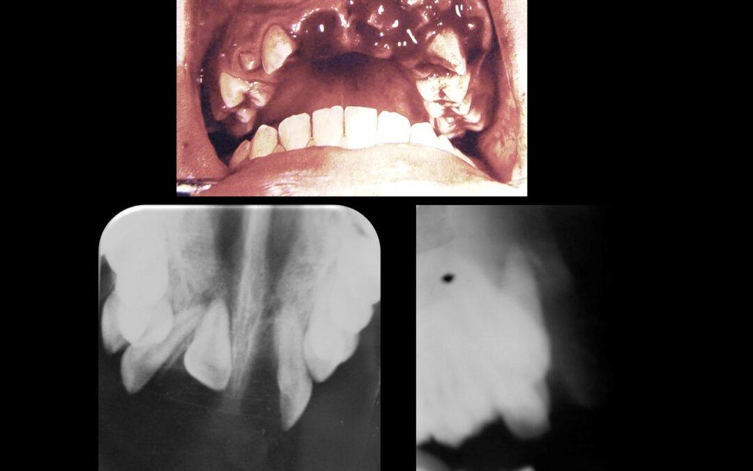 Caso 76 Traumatismo dento alveolar con avulsión del diente 2.1 y la luxación del 1.1.
