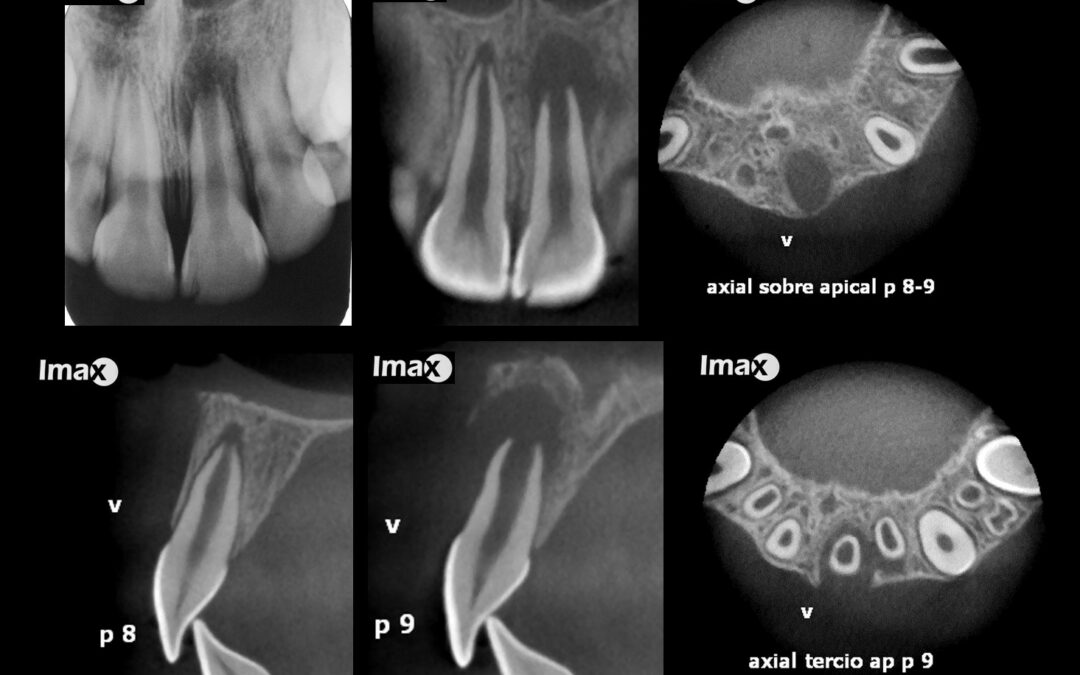 Caso 77 Secuela de traumatismo dento alveolar.