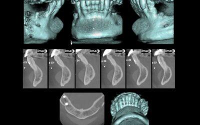 Caso 85 Implante de silicona en mentón.