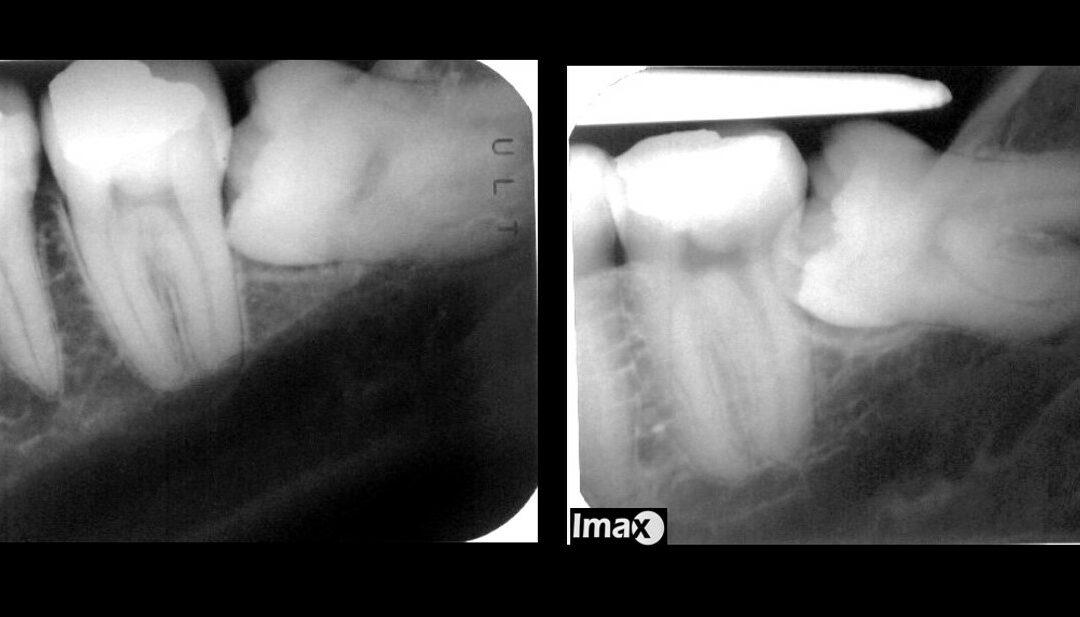 Caso 95 Radiografía de tercer molar inferior con pinzas.