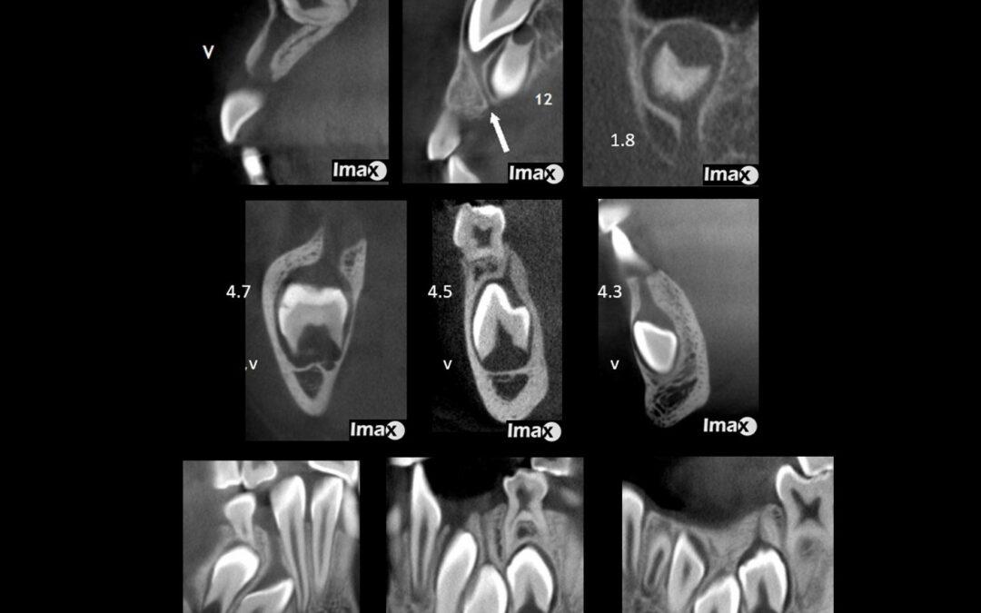 Caso 97 Gubernacular dentis ( cordón gubernacular).