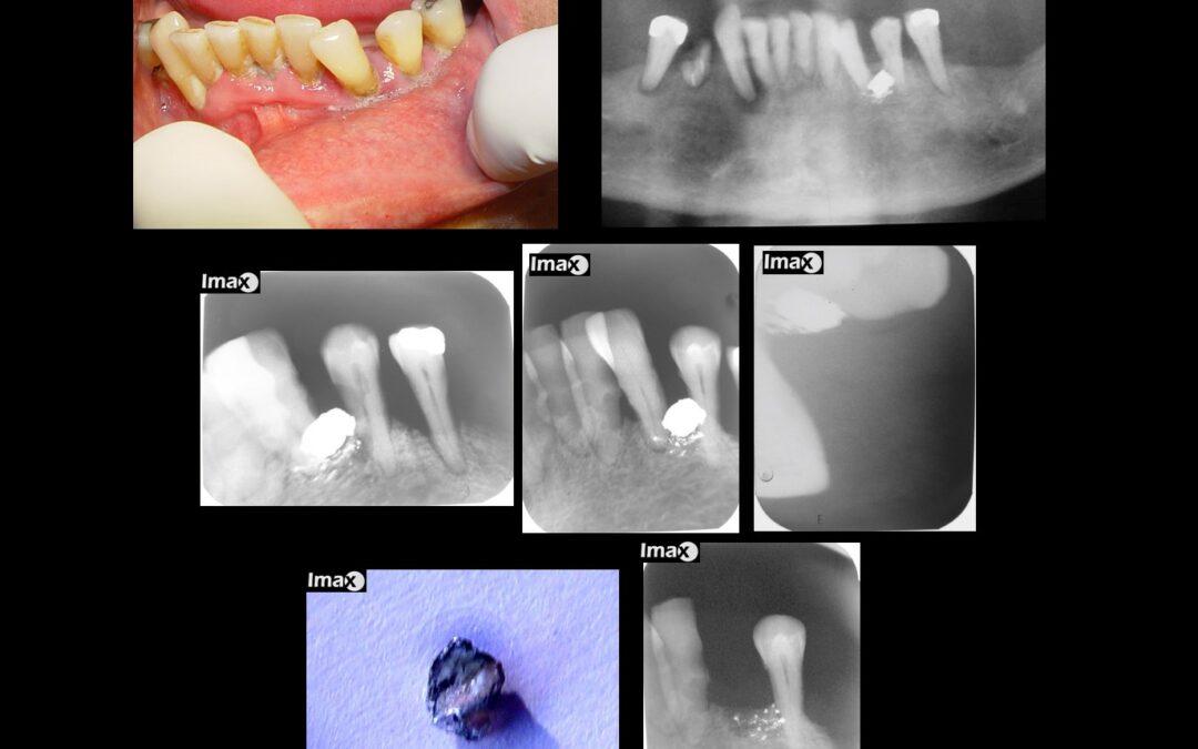 Caso 98 Cuerpo extraño; perdigón incrustado entre dientes 3.3 y 3.4.